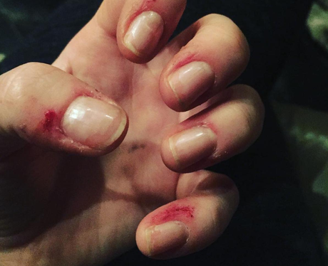 Ellie Goulding shows off hand injuries